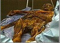 Mummified Iceman